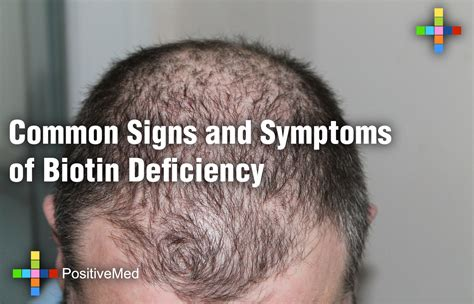 Common Signs and Symptoms of Biotin Deficiency - PositiveMed